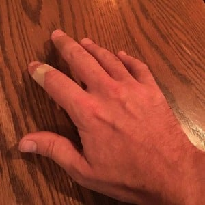 """Jimmy Fallon posted a photo of the cut hand on Facebook with the caption: """"Nothing that a few band aids couldn't fix"""". Image: Facebook"""